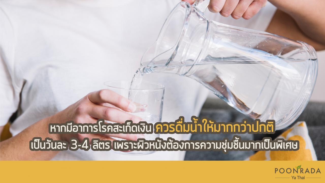 7อาหารเป็นยา_สะเก็ดเงิน-8