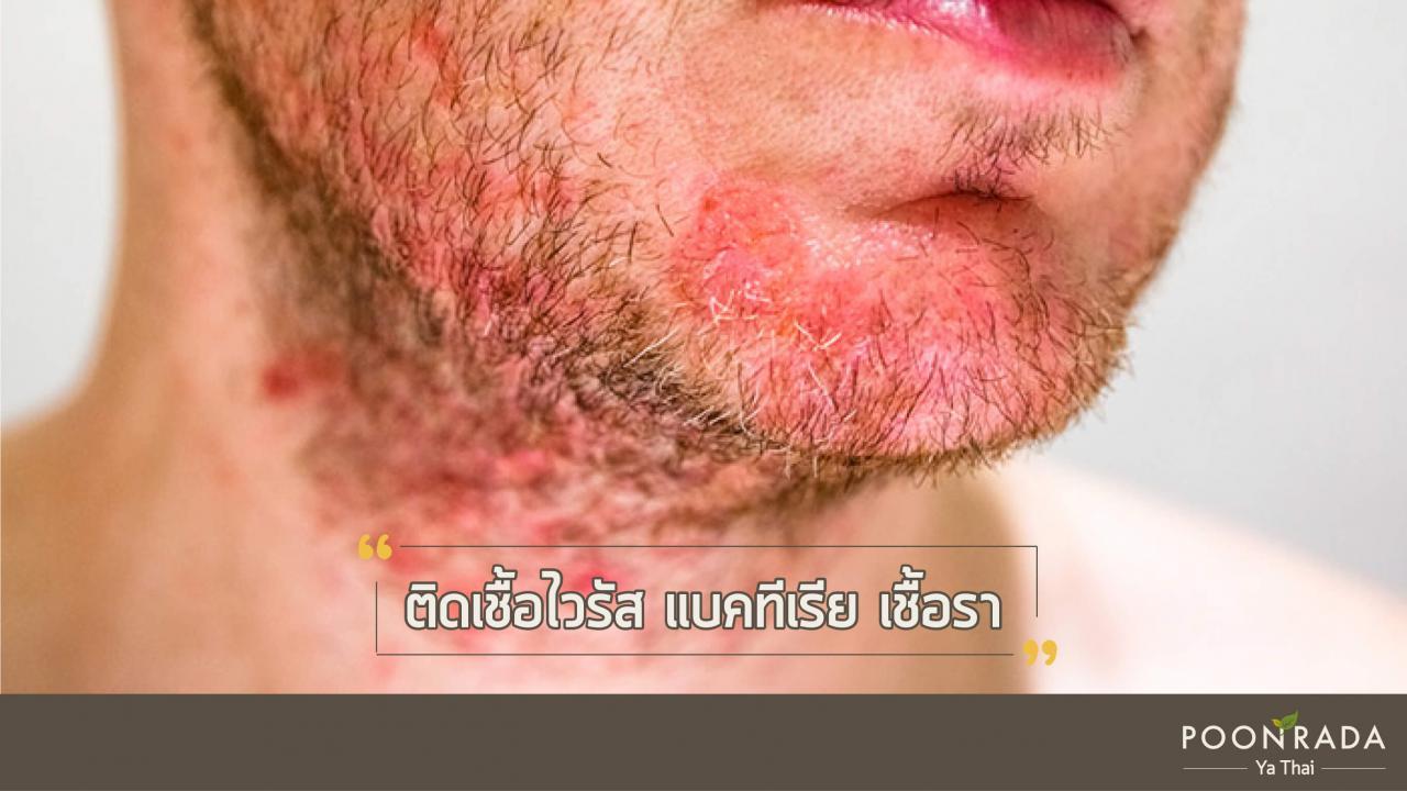 6_สาเหตุของโรคน้ำเหลืองเสีย-7