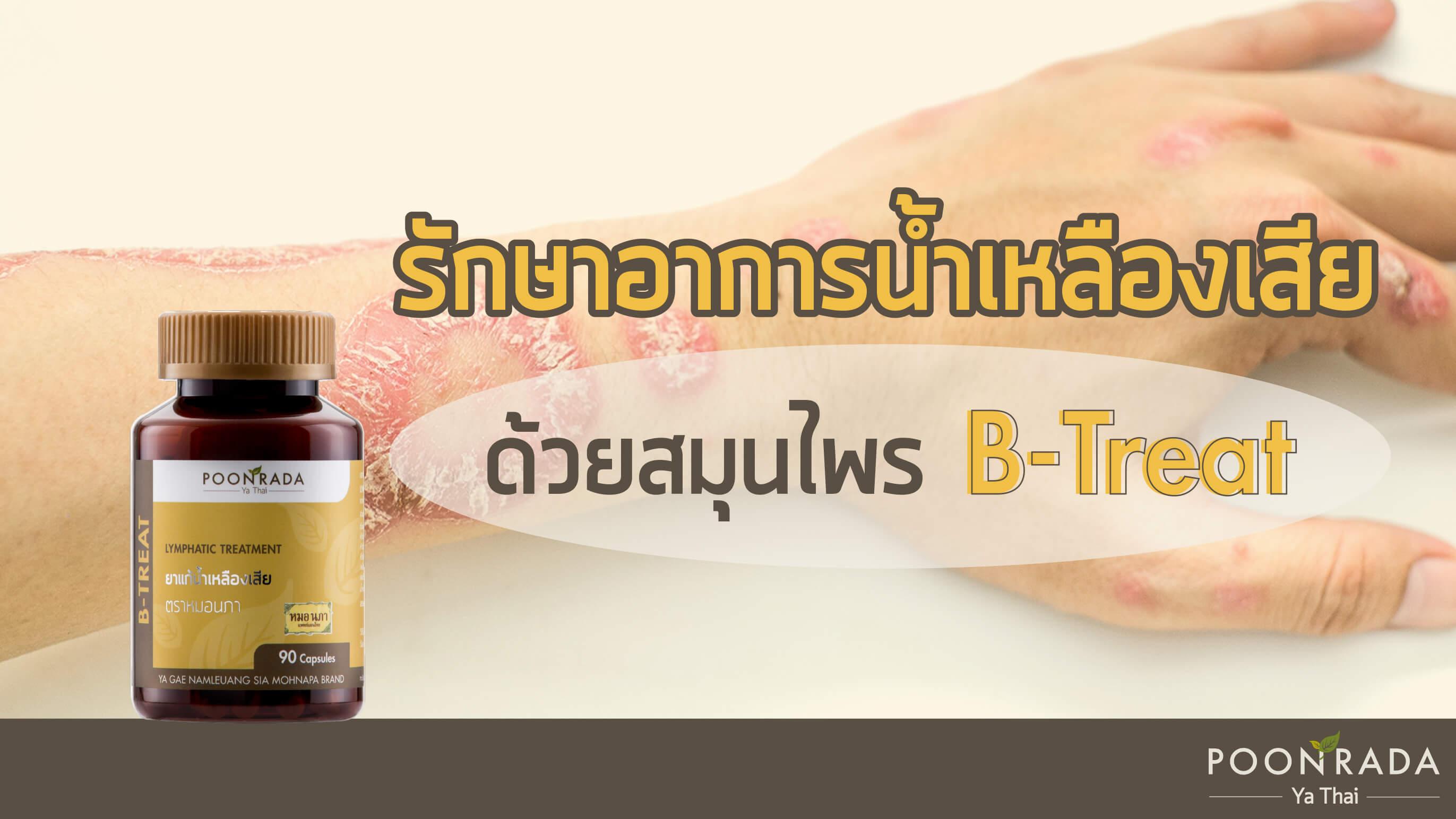 รักษาอาการน้ำเหลืองเสียด้วยสมุนไพร B-Treat