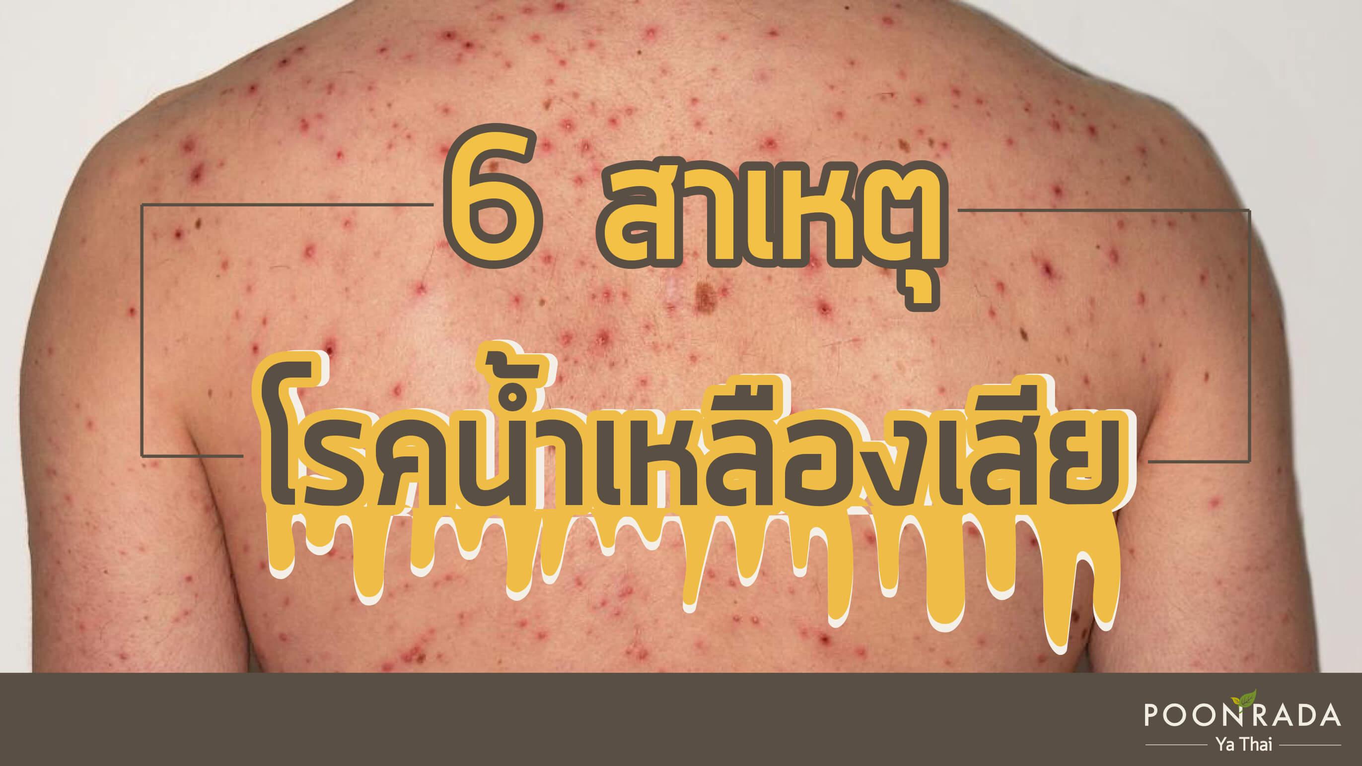6 สาเหตุของโรคน้ำเหลืองเสีย
