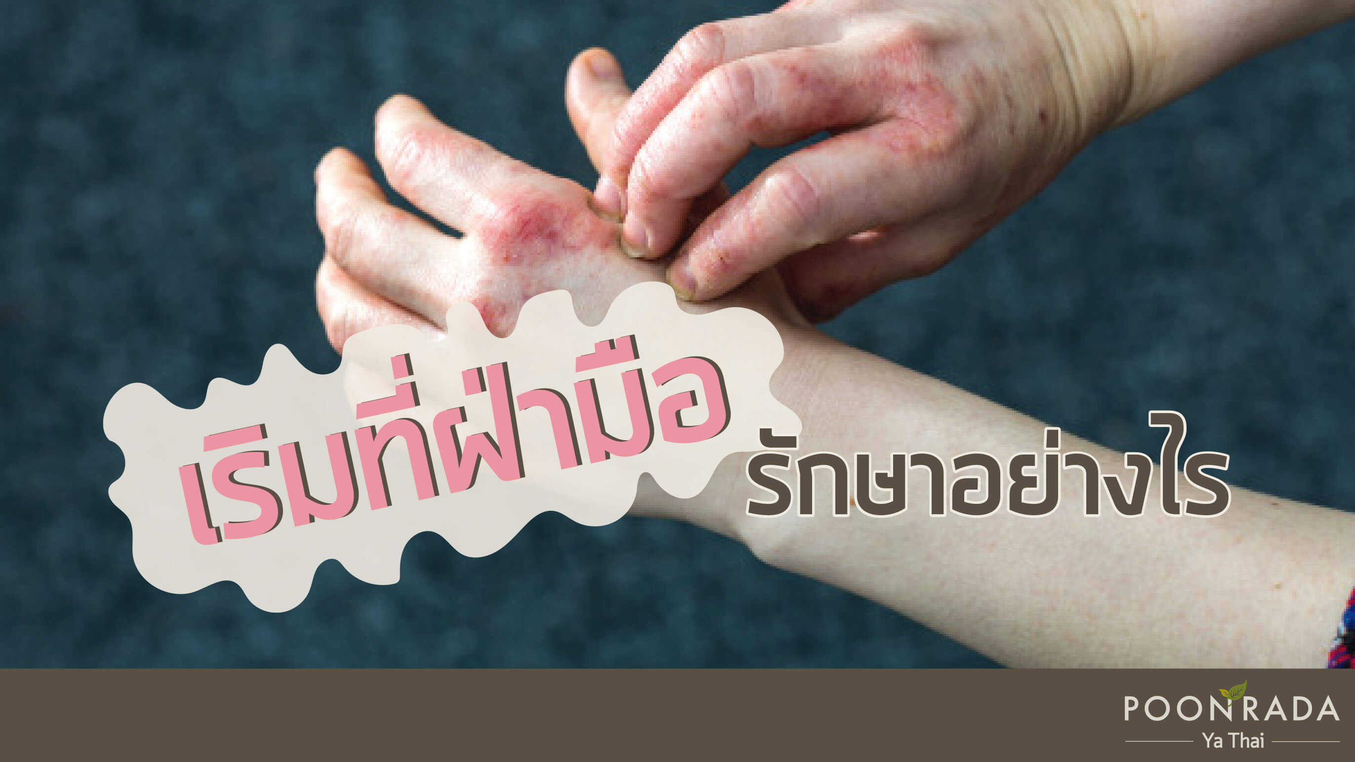 เริมที่ฝ่ามือ รักษาอย่างไร